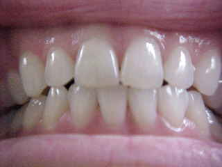 The teeth of a dental hygienist : (look good enough Dr. Syn???) (The Travel Addicts, Thailand)